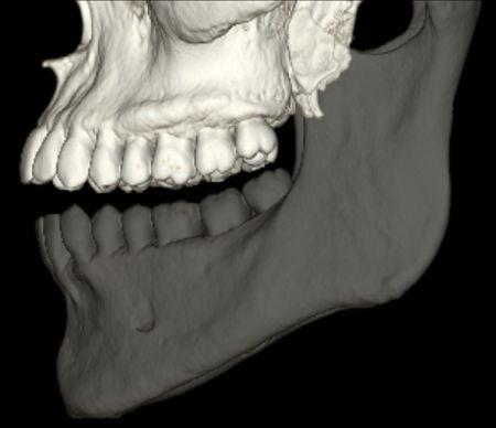 TAC dental Sabadell